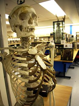 Preserved human body parts are kept in the Anatomy Learning Centre museum on the ninth floor of Botterell Hall.